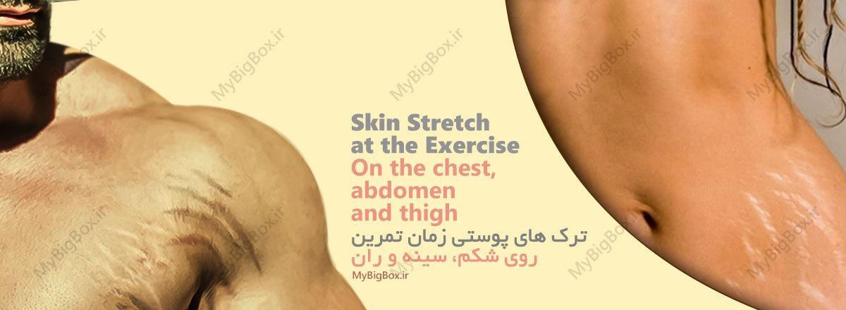 ترک های پوستی در اثر ورزش